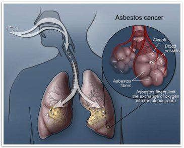 Asbestos In the Lungs